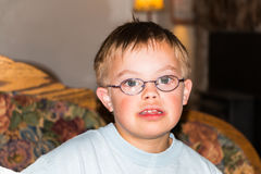 Portrait of Young Boy With Downs-Syndrome Stock Image