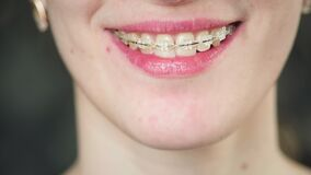 Portrait: A young girl with braces is looking at the camera. Teeth alignment and jaw correction. Mouth care. Young