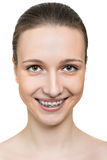 Portrait young woman with brackets on teeth Royalty Free Stock Photography