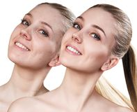 Happy young woman before and after retouch. Stock Photo