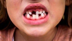 Portret bezzębny dziecko dziewczyny chybiania dojny i stały Teet Fotografia Stock