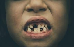 Portret bezzębny dziecko dziewczyny chybiania dojny i stały Teet Obrazy Stock