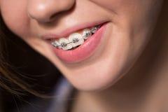 Portret pokazuje stomatologicznych brasy nastoletnia dziewczyna Obrazy Stock