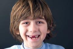 Portret uśmiechnięta bezzębna chłopiec Zdjęcia Royalty Free