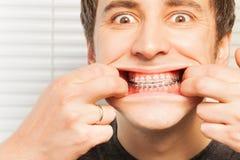 Portret van de leuke jonge mens met orthodontische steunen Royalty-vrije Stock Foto's