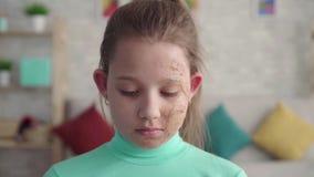 Portret van een droevig, vermoeid meisje met een tekort of een gebrand gezicht die de camera bekijken stock videobeelden