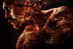Portret van een mens met een het branden textuur van de huid Royalty-vrije Stock Foto