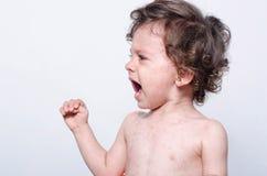 Portret van het leuke zieke babyjongen schreeuwen Stock Afbeeldingen
