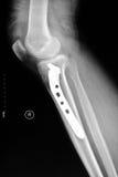 A posição lateral direita de imagens tibial do raio X do platô Imagem de Stock Royalty Free