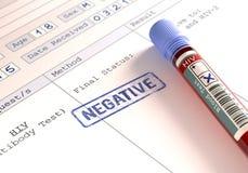 Positief en negatief HIV Stock Afbeelding