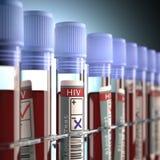 Positief en negatief HIV Royalty-vrije Stock Afbeelding