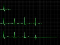 Positionnement d'ECG Images stock
