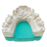 Positive teeth cast Royalty Free Stock Images