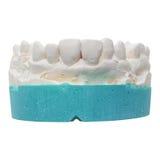 Positive teeth cast Stock Photo