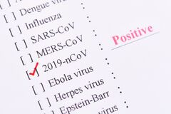 Free Positive Test Result Of Coronavirus 2019 Or 2019-nCoV Stock Photography - 170606812