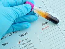 Positivo del virus de Zika Imágenes de archivo libres de regalías