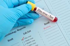 Positivo del virus de Zika Fotografía de archivo