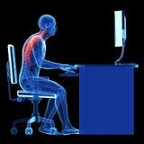 Posizione di seduta sbagliata Immagine Stock