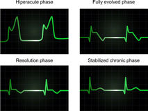 Post miocardial infarction phases Royalty Free Stock Photography