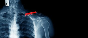 Post operation of clavicle fracture and fixed. X-ray image of human, post operation of clavicle fracture and fixed, banner design stock photography