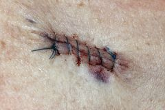Basal Cell Carcinoma. Post operative stitches after the removal of a  Basal Cell Carcinoma Stock Photo
