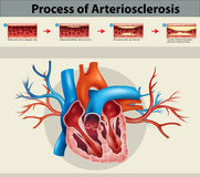 Poster of process of arteriosclerosis  Stock Photos