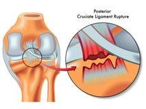 Posterior wiązadła cruciate poróżnienie ilustracji