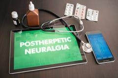 Postherpetic neuralgia (neurological disorder) diagnosis medical Stock Image