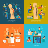 Posture 2x2 Design Concept Set. Posture 2x2 flat design concept set of people with scoliosis osteopath with  patient and corrective orthopedic products vector Stock Photography