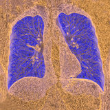 Poumon CT Photographie stock