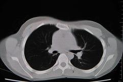 Poumon CT Image libre de droits