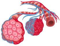 Poumon humain avec la maladie Images stock