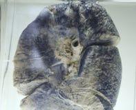 Poumon pollué Photographie stock libre de droits