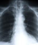 Poumons Photo stock