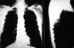 Poumons de fumeurs des rayons X Photo libre de droits