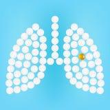 Poumons humains avec des pilules sur une illustration réaliste de vecteur de fond Photographie stock libre de droits