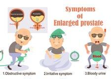 Powiększona prostata ilustracja wektor