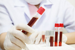 Próbka krwi Fotografia Stock