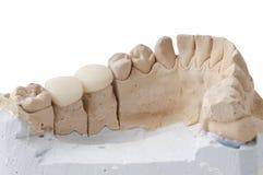 Prótese dental imagem de stock royalty free