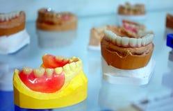 Prótese dental da porcelana do dente no dentista imagens de stock