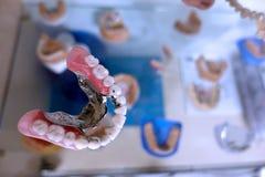 Prótese dental da porcelana do dente no dentista fotografia de stock royalty free