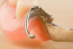 Prótese dental do arco fotografia de stock royalty free