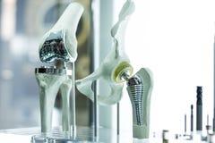 Prótese do joelho e do quadril para a medicina foto de stock