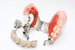 Prótese dental fotografia de stock royalty free