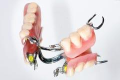 Prótesis parcial dental Imágenes de archivo libres de regalías
