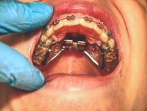 Especial high palatal braces for correction of birth defect stock image