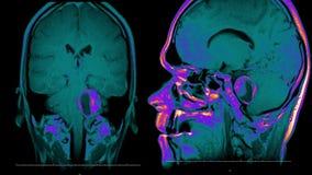 Prawdziwe życie mężczyzny mri móżdżkowy obraz cyfrowy z bolak neoplazmy medycznego reseach ilości zdrowie nauki 4k materiału film ilustracji
