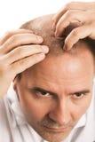 Pérdida de pelo del hombre de la alopecia de la calvicie aislada Fotos de archivo