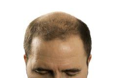 Pérdida de pelo del hombre de la alopecia de la calvicie aislada Imagen de archivo libre de regalías
