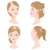 Pérdida de pelo femenina Imágenes de archivo libres de regalías